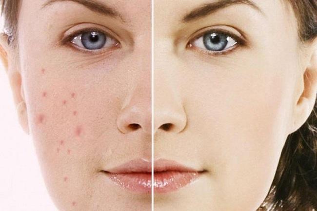 Liệt kê tất cả các bước skincare cho da mụn đúng chuẩn từ chuyên gia