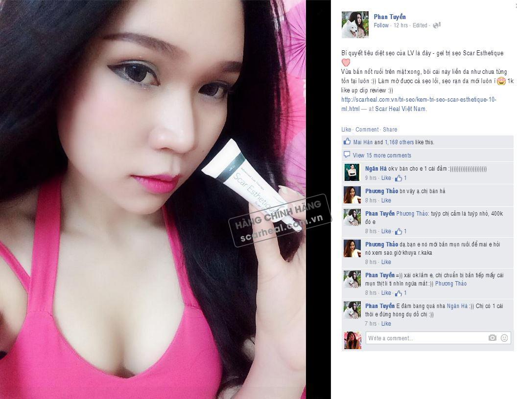 Cả hotgirl LV Babi cũng tin dùng sản phẩm kem trị sẹo Scar Esthetique 10ml: