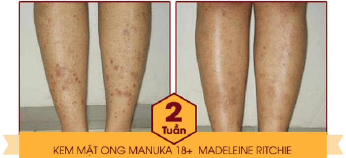 Hiệu quả điều trị bệnh vảy nến sau khi sử dụng kem mật ong Manuka 18+
