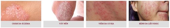 Một số bệnh da liễu thường gặp, phải làm sao điều trị hết?