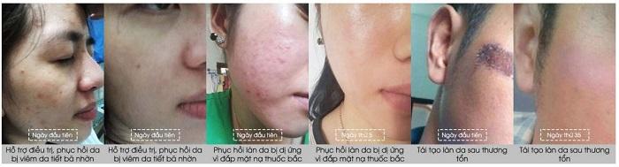 Hiệu quả của khách hàng sau khi sử dụng kem mật ong Manuka 16+ Madeleine Ritchie