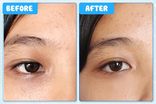 Vết thâm quầng giảm rõ rệt sau khi Hương (nhân viên văn phòng) sử dụng kem trị thâm quầng mắt White Label sau 1 tháng