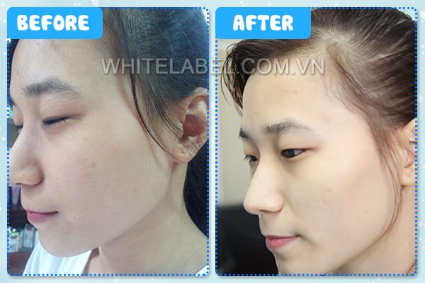 Kem dưỡng trắng da White Label cũng là dòng sản phẩm được sử dụng phổ biến tại Việt Nam
