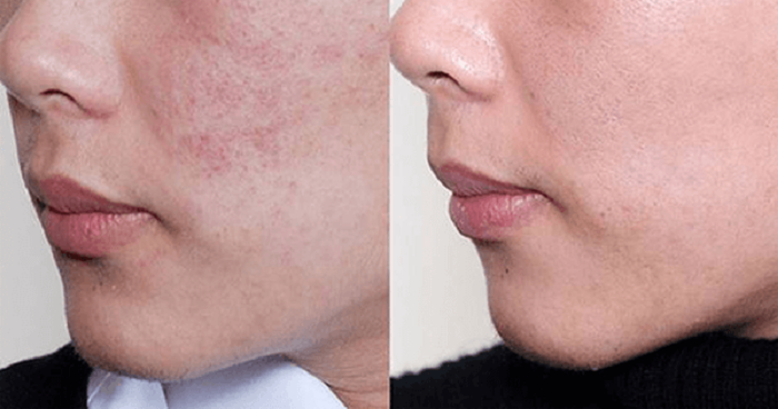Làn da mềm mịn và đều màu trở lại sau khi sử dụng sữa rửa mặt Murad Essential-C Cleanser