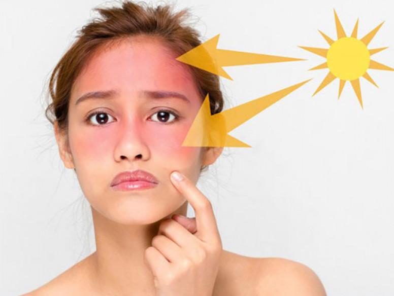 Ánh nắng mặt trời gây ảnh hưởng xấu đến làn da
