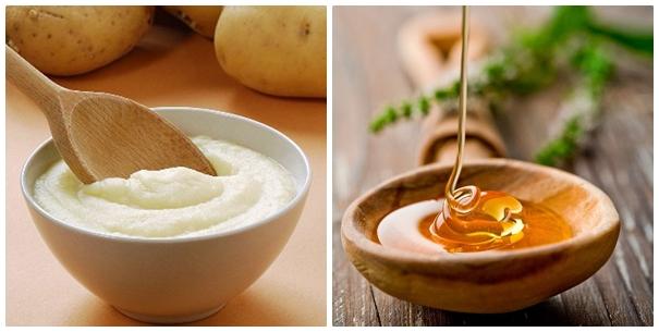Trị mụn làm sáng da và chống lão hóa hiệu quả với mặt nạ khoai tây mật ong
