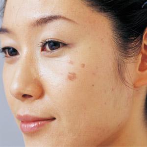 Nám da: Tình trạng phổ biến ở phụ nữ u 30!