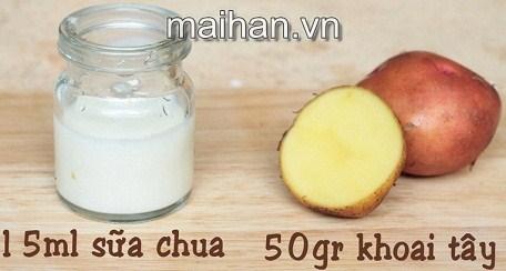Trị mụn cám siêu dễ, siêu tiết kiệm từ sữa chua và khoai tây