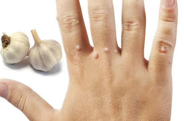 Bật mí cách trị mụn cóc ở tay hiệu quả không tái phát bằng tỏi