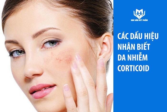 Dấu hiệu da nhiễm corticoid và cách điều trị an toàn