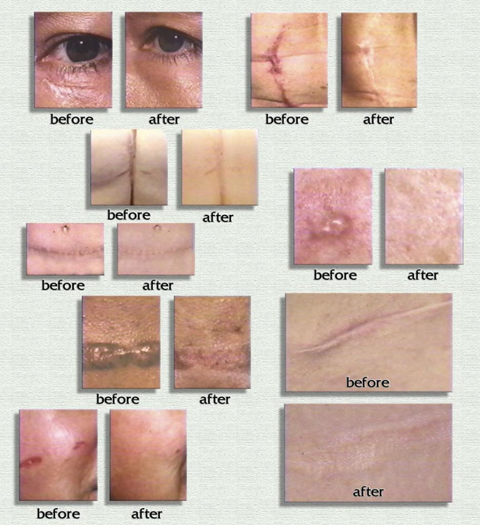 Hiệu quả sau khi sử dụng gel trị sẹo Rejuvasil