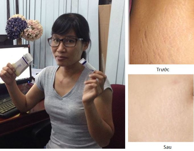 Phản hồi người dùng về gel trị sẹo Scar Rejuvasil