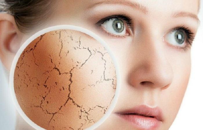 Sử dụng sản phẩm sửa rửa mặt dành cho da mụn thông thường thường gây khô da