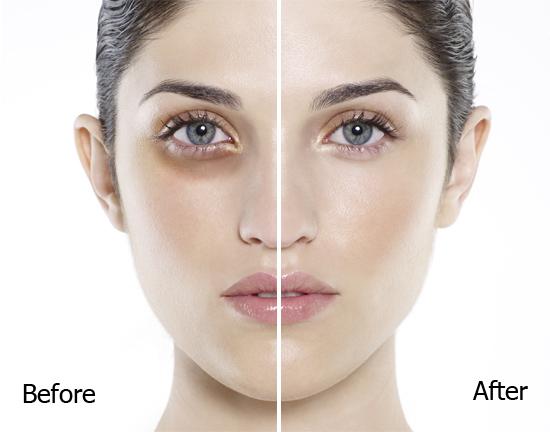 Hiệu quả thật bất ngờ chỉ sau 4 tuần sử dụng kem chống thâm quầng mắt Rejuvaskin