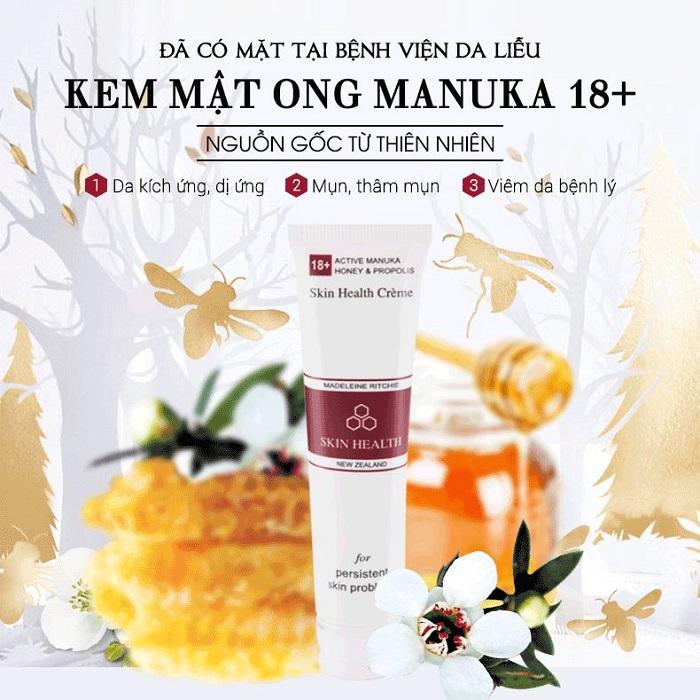 Kem mật ong Manuka 18+ sự lựa chọn hoàn hảo cho làn da bị tổn thương hay bị mụn, bệnh vảy nến, chàm da