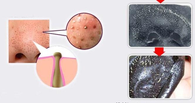 Mụn đầu đen rất khó trị và thường tái đi tái lại nhiều lần