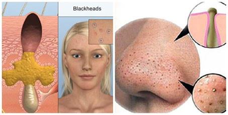 Trị mụn đầu đen hiệu quả