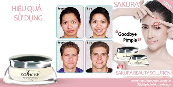 Sử dụng kem trị mụn Sakura hiệu quả nhanh chóng sau 3-4 tuần