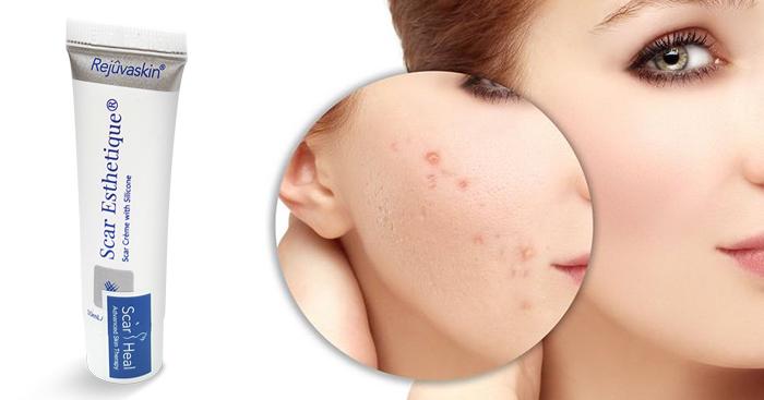 Sử dụng kem trị sẹo Scar Esthetique có mang đến hiệu quả tốt không?