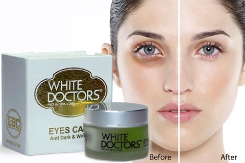 Top 5 kem trị thâm quầng mắt hiệu quả vi diệu không ngờ