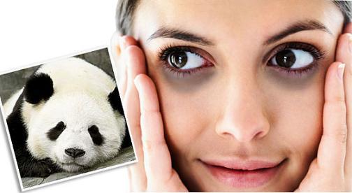 Chẳng ai muốn có một đôi mắt thâm quầng như gấu trúc