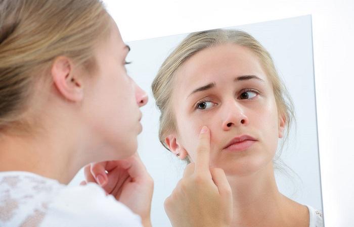 Tác hại của kem trộn chứa corticoid và cách thải độc cho làn da