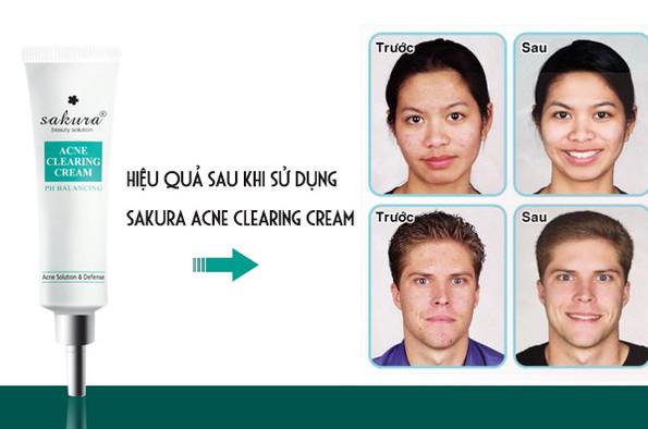 Top 3 loại kem trị mụn được ưa chuộng sử dụng nhất hiện nay