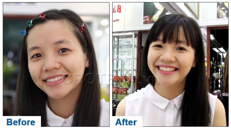 Chia sẻ của một cô gái trẻ ở Việt Nam