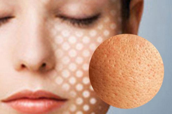 khám phá bí quyết se khít lỗ chân lông hiệu quả trên mặt