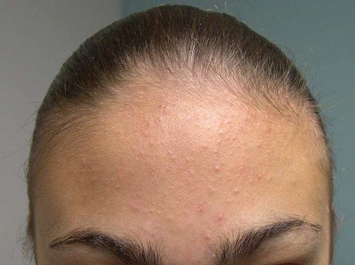 Mụn ẩn xuất hiện khi bụi bẩn và chất độc hại không được loại bỏ khỏi làn da