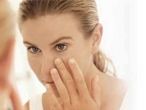Nám da là một loại bệnh lý mà hầu hết phụ nữ sau tuổi 30 đều gặp phải