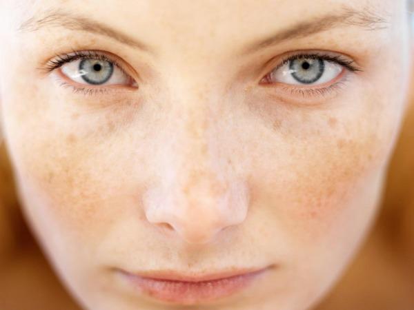 Nám và tàn nhang gây mất thẩm mỹ trên khuôn mặt