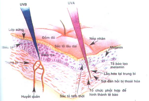 Nguyên nhân bên ngoài gây nám da chủ yếu là do tác hại của ánh nắng mặt trời