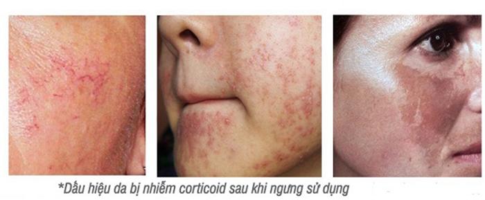 Tình trạng da sau khi ngưng sử dụng mỹ phẩm chứa corticoid
