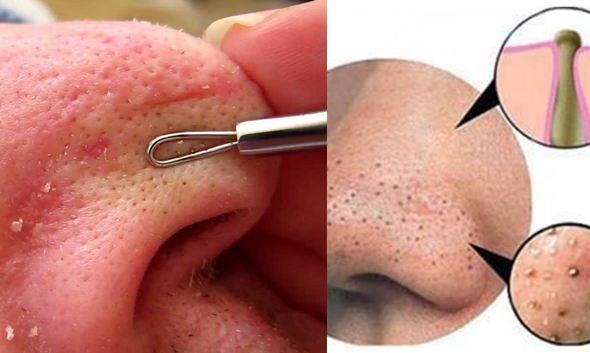 Với mụn ở mũi, bạn dùng cây nặn ấn vào da và hơi chếch vào bên trong