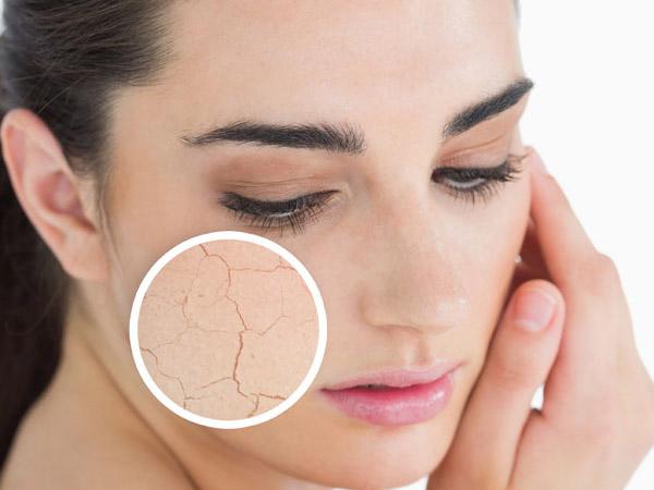 Nước hoa hồng loại bỏ lớp tế bào chết giúp da mịn màng, tươi mới