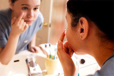 Sử dụng kem trị mụn sau khi rửa mặt sạch bằng sữa rửa mặt dành cho da mụn