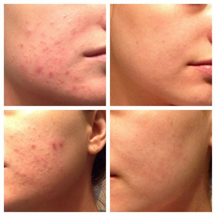 Hiệu quả giảm mụn rõ rệt sau khi sử dụng gel rửa mặt dành cho da mụn Murad