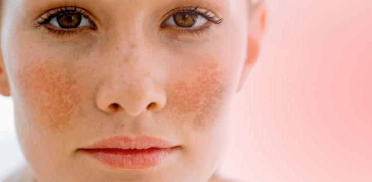 Dầu gấc là một nguyên liệu tự nhiên trị nám da rất tốt