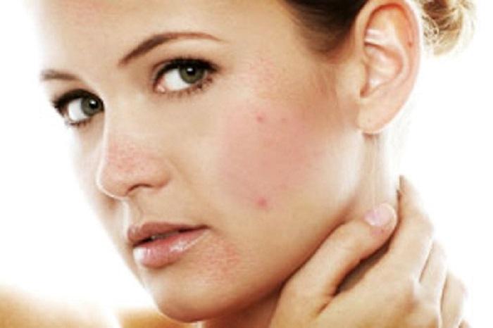 Làn da nhạy cảm, da mụn tẩy tế bào chết thường gây khô da, kích ứng