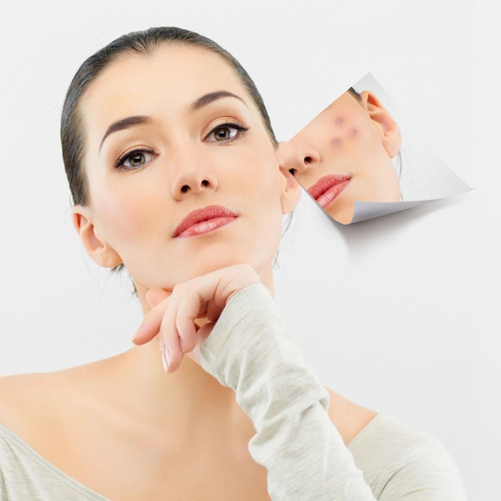 Tẩy tế bào chết đều đặn sẽ ngăn ngừa và hỗ trợ điều trị mụn rất hữu hiệu.