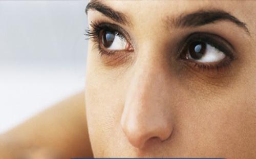 Quầng thâm mắt khiến khuôn mặt bạn kém xinh tươi