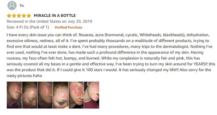 Phản hồi của khách hàng khi mua Paula's Choice Clear Regular Strength Anti-Redness Exfoliating Solution tại Mỹ