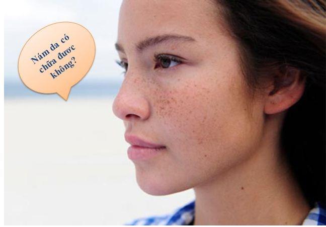 Nám da hoàn toàn có thể chữa khỏi dứt điểm