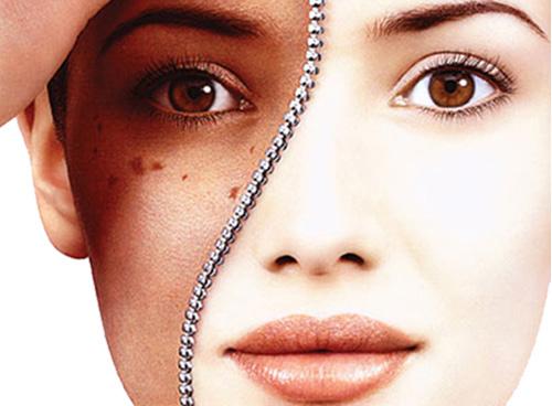 Nguyên nhân gây nám da, tàn nhang