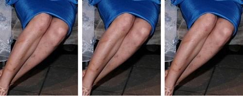 Sẹo ảnh thâm ảnh hưởng đến vẻ đẹp của đôi chân