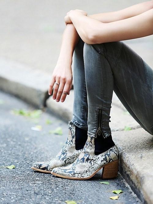Đôi chân loang lổ sẹo thâm khiến chị em mất tự tin