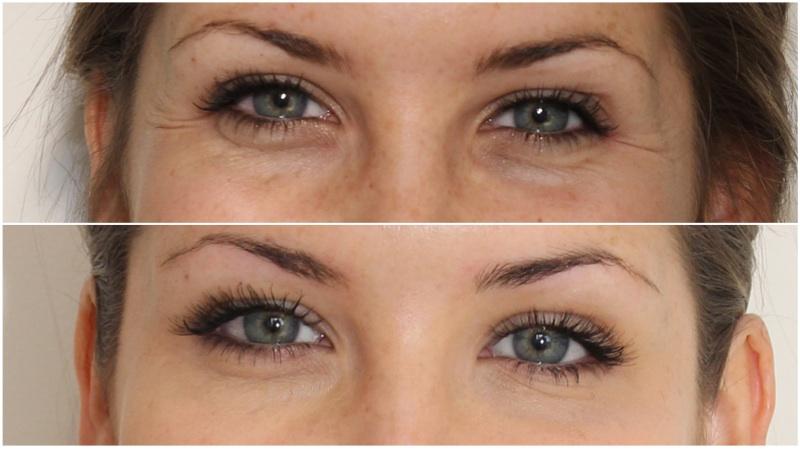 Trước và sau khi sử dụng kem dưỡng vùng mắt Shiseido