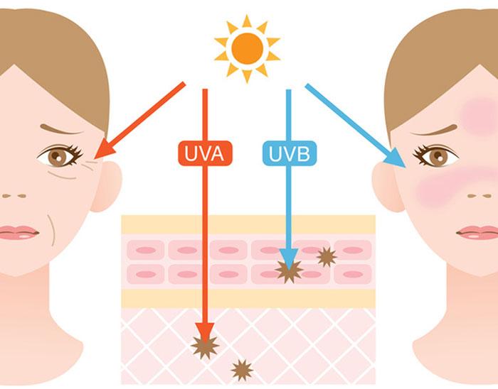 Sự tàn phá của tia UV đối với làn da